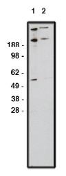 AP05303PU-N - GLI1