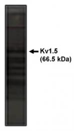 AP05126PU-N - KCNA5