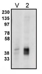 AP05145PU-N - PPAP2C / LPP2