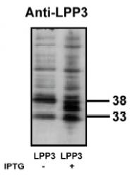 AP05146PU-N - PPAP2B / LPP3