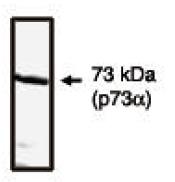 AP05152PU-N - Tumor protein p73 (TP73)