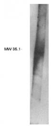 AP05176PU-N - PPAP2B / LPP3