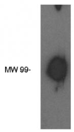 AP05178PU-N - Autotaxin / ENPP2