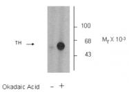 AP05191PU-N - Tyrosine 3-monooxygenase (TH)