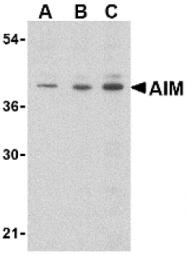 AP05215PU-N - CD5L / API6