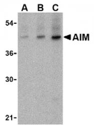 AP05216PU-N - CD5L / API6