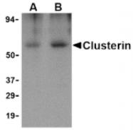 AP05217PU-N - Apolipoprotein J / Apo J