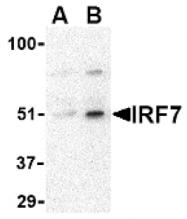 AP05222PU-N - IRF7