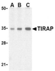 AP05226PU-N - TIRAP