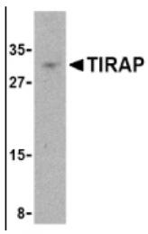 AP05227PU-N - TIRAP