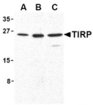 AP05228PU-N - TICAM2 / TRAM