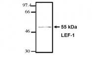 AM05261PU-L - LEF1