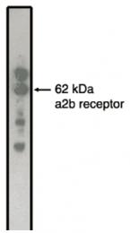 AM05339PU-N - Alpha-2B adrenergic receptor