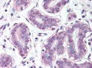 AP07174PU-N - BRCA1 / RNF53