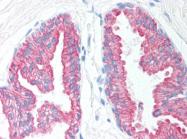 AP07201PU-N - Cytokeratin 18