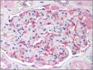 AM06045PU-N - Glutathione peroxidase 6 / GPX6