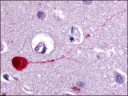AP06825PU-N - Muscarinic acetylcholine receptor M3