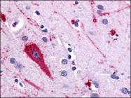 AP06849PU-N - Serotonin receptor 5A (HTR5A)
