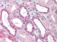 AP07246PU-N - WT1 / Wilms tumor protein