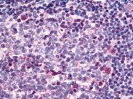 AP07256PU-N - SARM1
