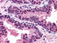 AP07306PU-N - CD262 / TRAILR2
