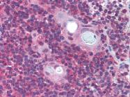 AP07332PU-N - PAFAH1B1 / LIS1