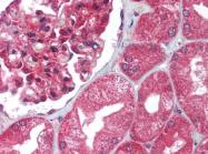 AP07386PU-N - Uracil-DNA glycosylase (UNG)