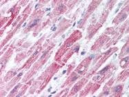 AP07395PU-N - Dihydrolipoyl dehydrogenase
