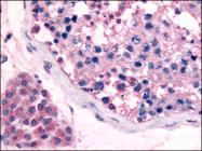 AP06930PU-N - GPR18 / NAGly receptor