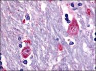 AP06976PU-N - Muscarinic acetylcholine receptor M3