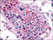 AP06986PU-N - Serotonin receptor 1E (HTR1E)