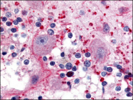 AP06995PU-N - Serotonin receptor 5A (HTR5A)