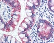 AP07484PU-N - Cytokeratin 18