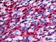 AP07015PU-N - CD135 / FLT3
