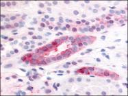 AP07096PU-N - CD140b / PDGFRB