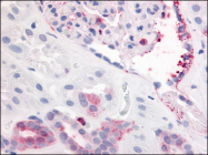 AP07097PU-N - CD140b / PDGFRB