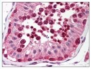 AP07803PU-N - Uracil-DNA glycosylase (UNG)
