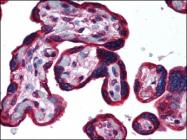 AP07154PU-N - Cytokeratin 19