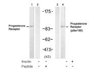 AP08044PU-S - Progesterone receptor