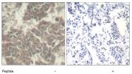 AP08094PU-N - Tyrosine-protein kinase JAK2