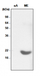 SM6011 - Alpha-crystallin B chain / CRYA2