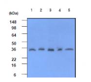 AM09005PU-N - C-reactive protein (CRP)