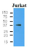 AM09007PU-N - CYR61