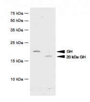 SM6016 - Somatotropin / Growth Hormone / GH1