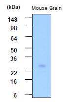 AM09015PU-N - Phosphoserine phosphatase