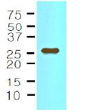 AM09020PU-N - Interleukin-33 (IL33)