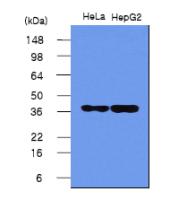 SM6037 - Nucleophosmin