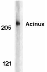 AP05824PU-N - Acinus / ACIN1
