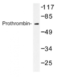 AP01171PU-N - Prothrombin (F2)