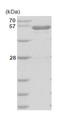 AR09038PU-L - Glucokinase / Hexokinase-4
